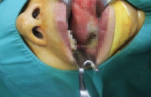 Chuyên gia cảnh báo nhầm lẫn ung thư với tưa miệng